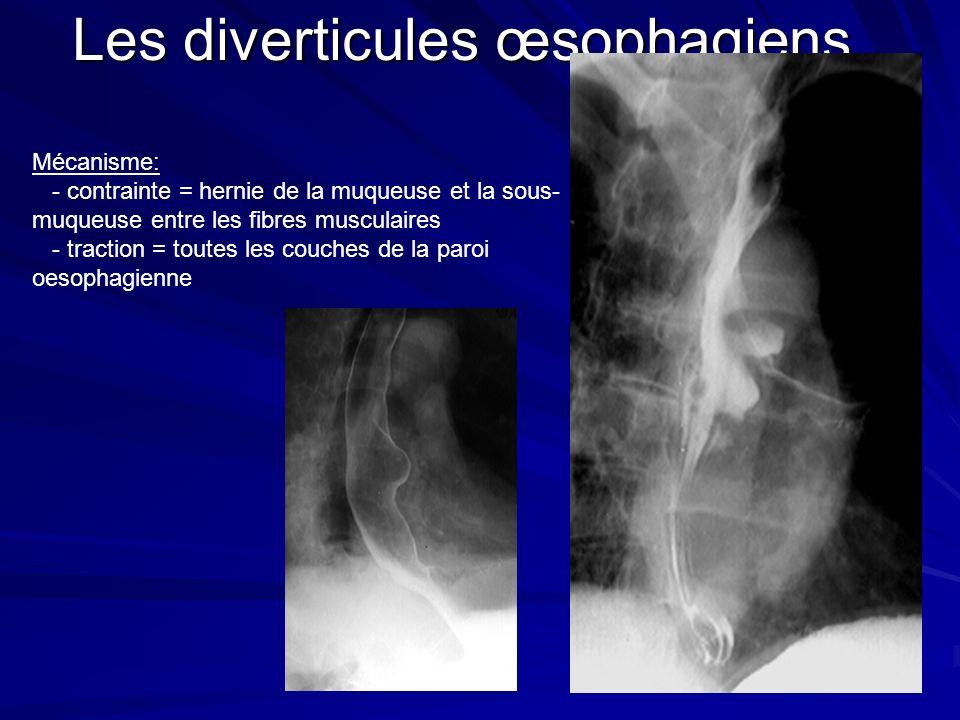 Les diverticules œsophagiens Mécanisme: - contrainte = hernie de la muqueuse et la sous- muqueuse entre les fibres musculaires - traction = toutes les couches de la paroi oesophagienne