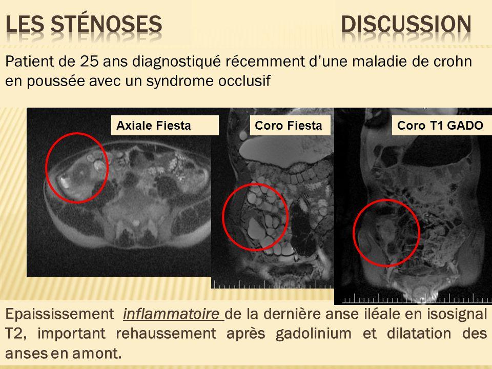 Epaississement inflammatoire de la dernière anse iléale en isosignal T2, important rehaussement après gadolinium et dilatation des anses en amont. Pat