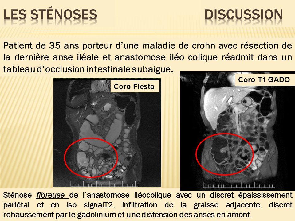 Patient de 35 ans porteur dune maladie de crohn avec résection de la dernière anse iléale et anastomose iléo colique réadmit dans un tableau docclusio