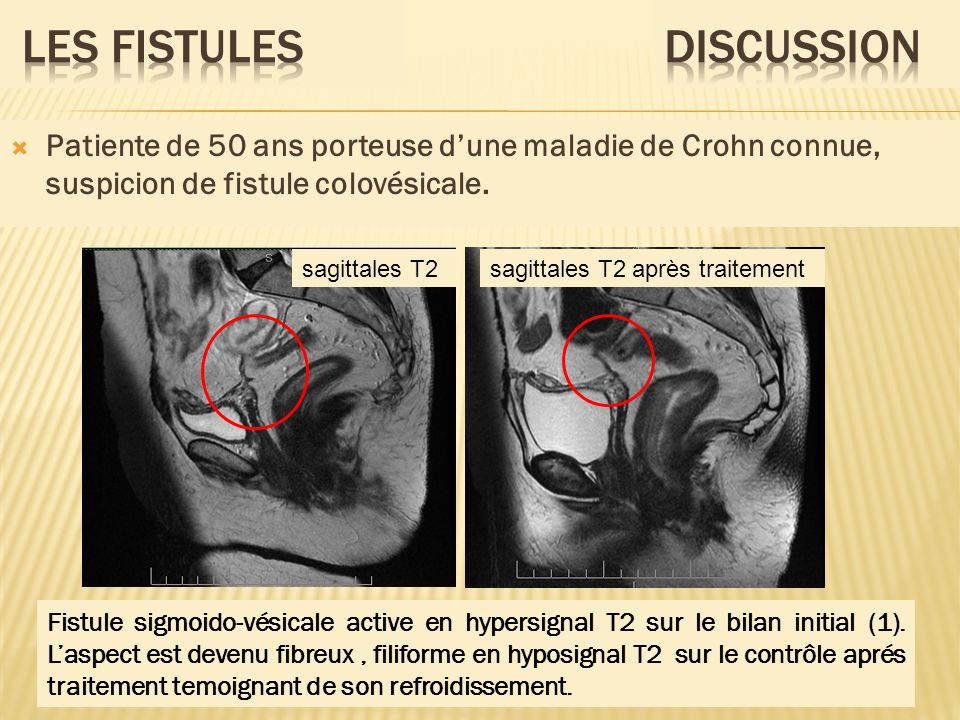 Fistule sigmoido-vésicale active en hypersignal T2 sur le bilan initial (1). Laspect est devenu fibreux, filiforme en hyposignal T2 sur le contrôle ap
