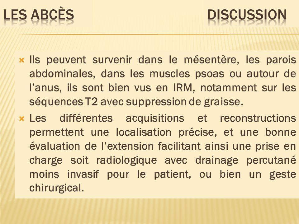 Ils peuvent survenir dans le mésentère, les parois abdominales, dans les muscles psoas ou autour de lanus, ils sont bien vus en IRM, notamment sur les