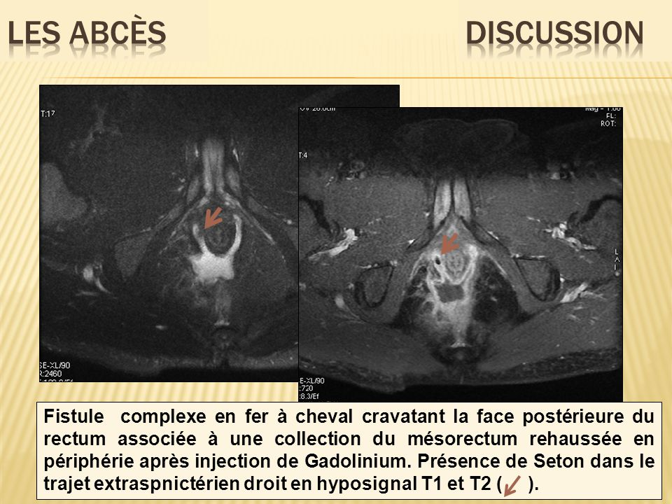 Fistule complexe en fer à cheval cravatant la face postérieure du rectum associée à une collection du mésorectum rehaussée en périphérie après injecti