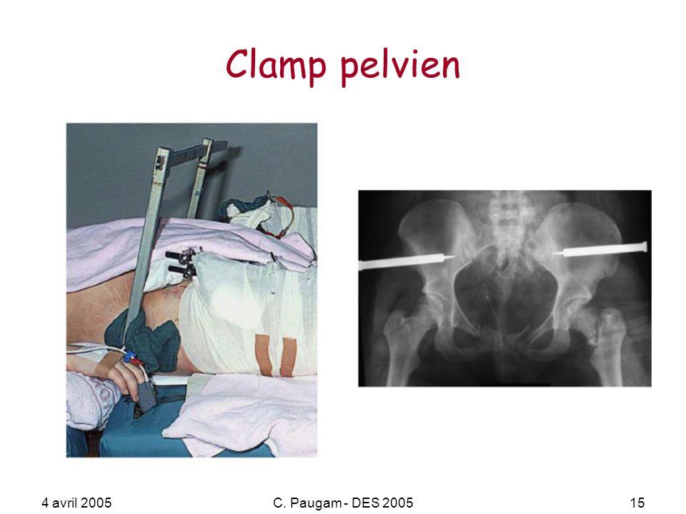 4 avril 2005C. Paugam - DES 200515 Clamp pelvien