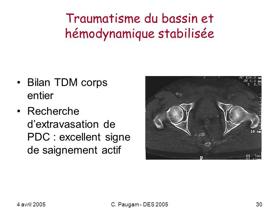 4 avril 2005C. Paugam - DES 200530 Traumatisme du bassin et hémodynamique stabilisée Bilan TDM corps entier Recherche dextravasation de PDC : excellen