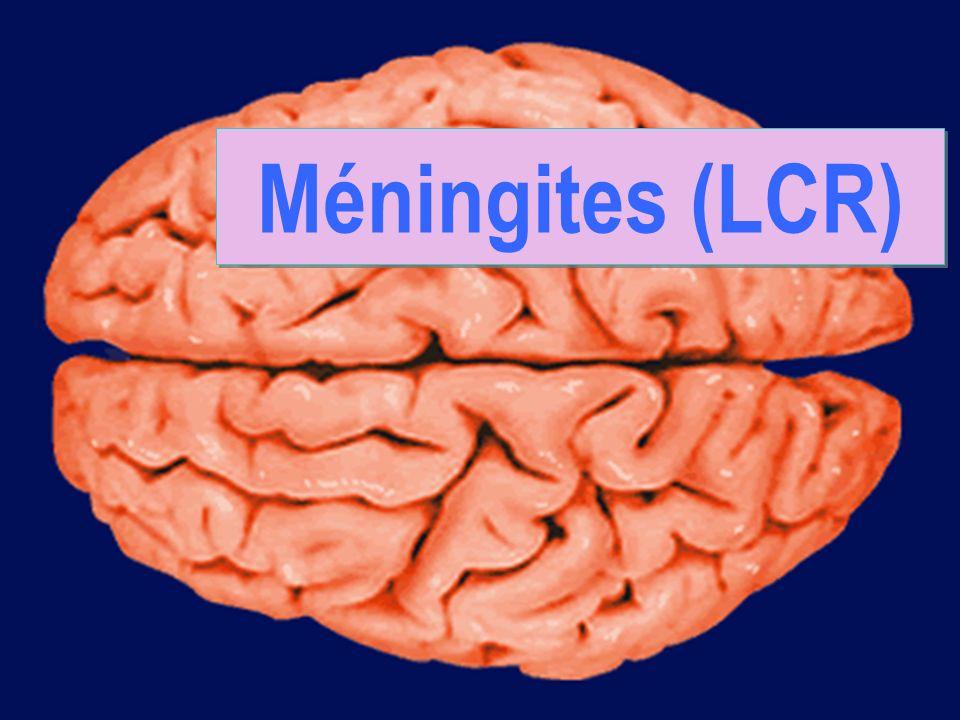 dimanche 18 mai 2014 Méningites 1 Méningites (LCR)
