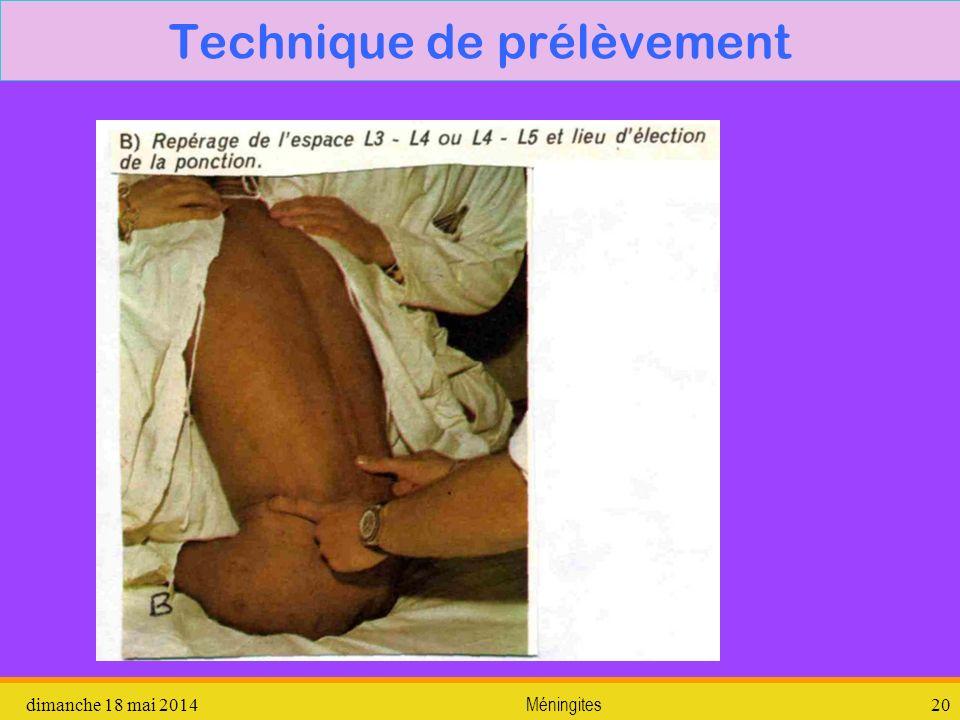 dimanche 18 mai 2014 Méningites 20 Technique de prélèvement