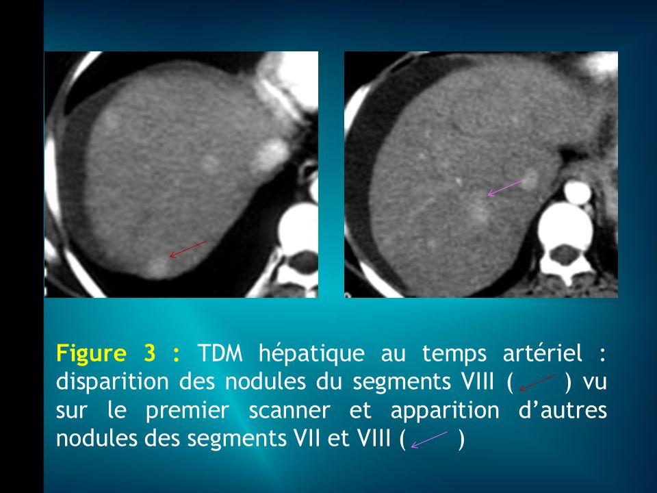 Figure 3 : TDM hépatique au temps artériel : disparition des nodules du segments VIII ( ) vu sur le premier scanner et apparition dautres nodules des segments VII et VIII ( )