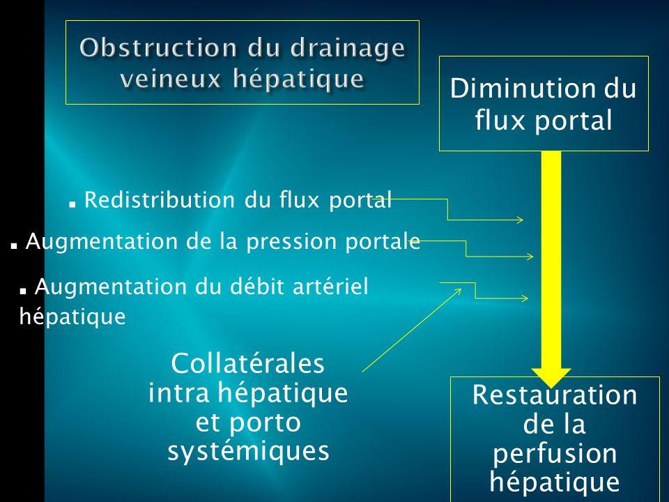 Redistribution du flux portal.Augmentation de la pression portale.