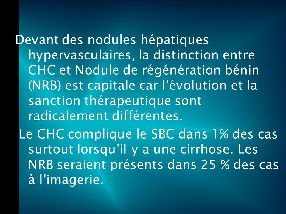 Devant des nodules hépatiques hypervasculaires, la distinction entre CHC et Nodule de régénération bénin (NRB) est capitale car lévolution et la sanction thérapeutique sont radicalement différentes.