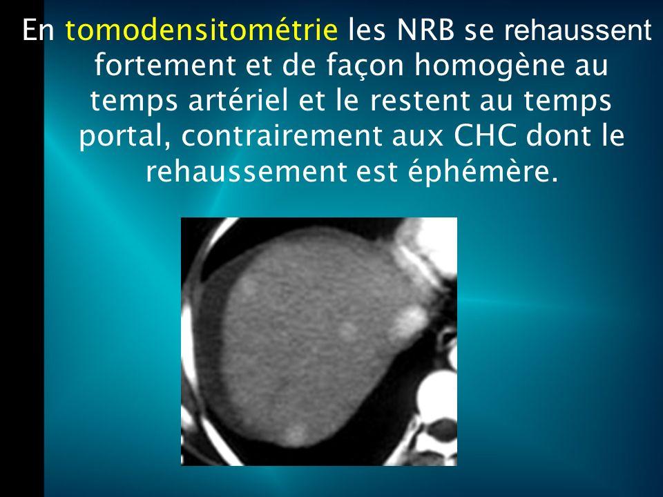 En tomodensitométrie les NRB se rehaussent fortement et de façon homogène au temps artériel et le restent au temps portal, contrairement aux CHC dont le rehaussement est éphémère.