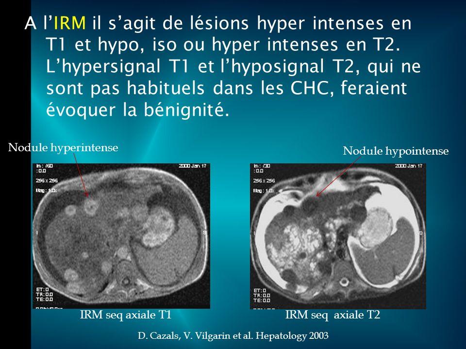 A lIRM il sagit de lésions hyper intenses en T1 et hypo, iso ou hyper intenses en T2.