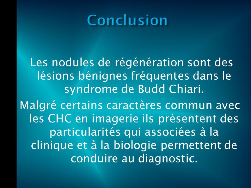 Les nodules de régénération sont des lésions bénignes fréquentes dans le syndrome de Budd Chiari.
