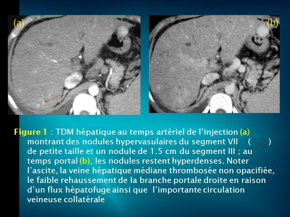 DIAGNOSTIC DU SBC : - Signes directs : * Thrombose des veines hépatiques * Collatérales inter hépatique et diaphragmatiques - Signes indirects : * Dysmorphie hépatique * Anomalies de signal avec un rehaussement différent de la périphérie au centre dépendant du stade.