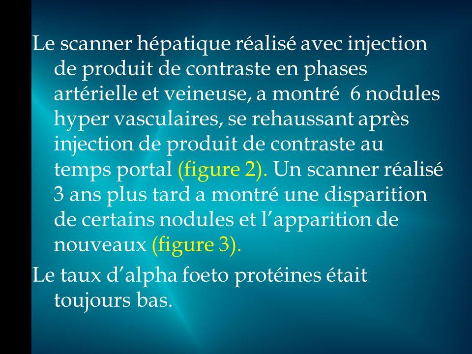Le scanner hépatique réalisé avec injection de produit de contraste en phases artérielle et veineuse, a montré 6 nodules hyper vasculaires, se rehaussant après injection de produit de contraste au temps portal (figure 2).