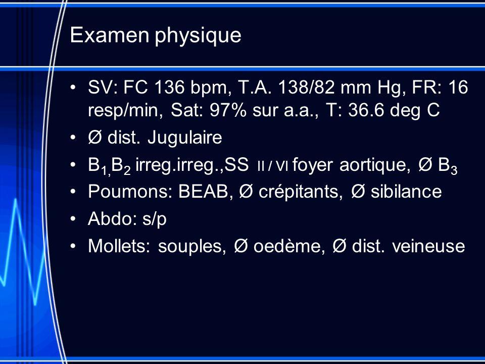 Examen physique SV: FC 136 bpm, T.A. 138/82 mm Hg, FR: 16 resp/min, Sat: 97% sur a.a., T: 36.6 deg C Ø dist. Jugulaire B 1, B 2 irreg.irreg.,SS II / V
