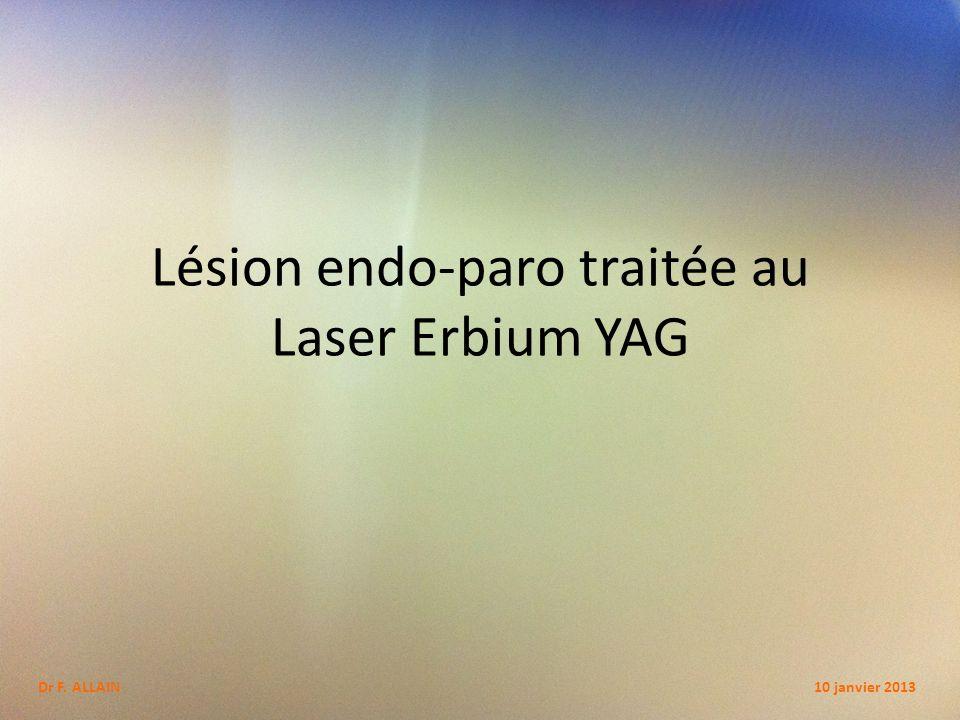 Lésion endo-paro traitée au Laser Erbium YAG 10 janvier 2013Dr F. ALLAIN