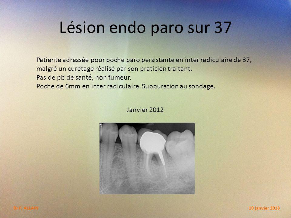 Lésion endo paro sur 37 Janvier 2012 Patiente adressée pour poche paro persistante en inter radiculaire de 37, malgré un curetage réalisé par son praticien traitant.