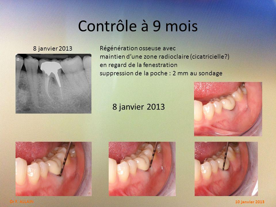 Evolution de la cicatrisation 10 juillet2012 13 avril 2012 8 janvier 2013 10 janvier 2013Dr F.