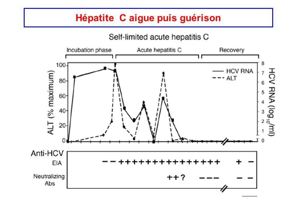 Hépatite C aigue puis guérison