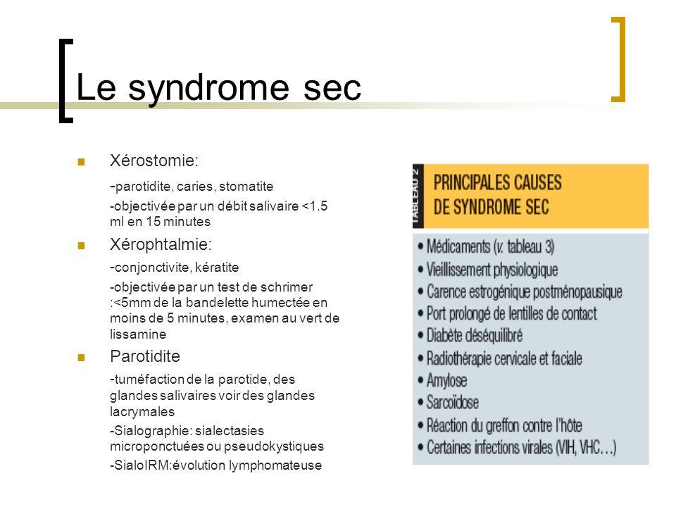 Le syndrome sec Xérostomie: - parotidite, caries, stomatite -objectivée par un débit salivaire <1.5 ml en 15 minutes Xérophtalmie: - conjonctivite, ké
