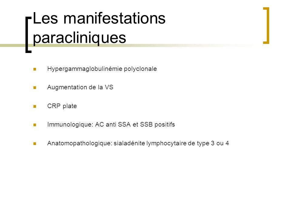 Les manifestations paracliniques Hypergammaglobulinémie polyclonale Augmentation de la VS CRP plate Immunologique: AC anti SSA et SSB positifs Anatomo