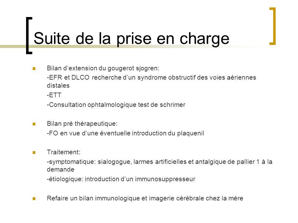 Suite de la prise en charge Bilan dextension du gougerot sjogren: -EFR et DLCO recherche dun syndrome obstructif des voies aériennes distales -ETT -Co