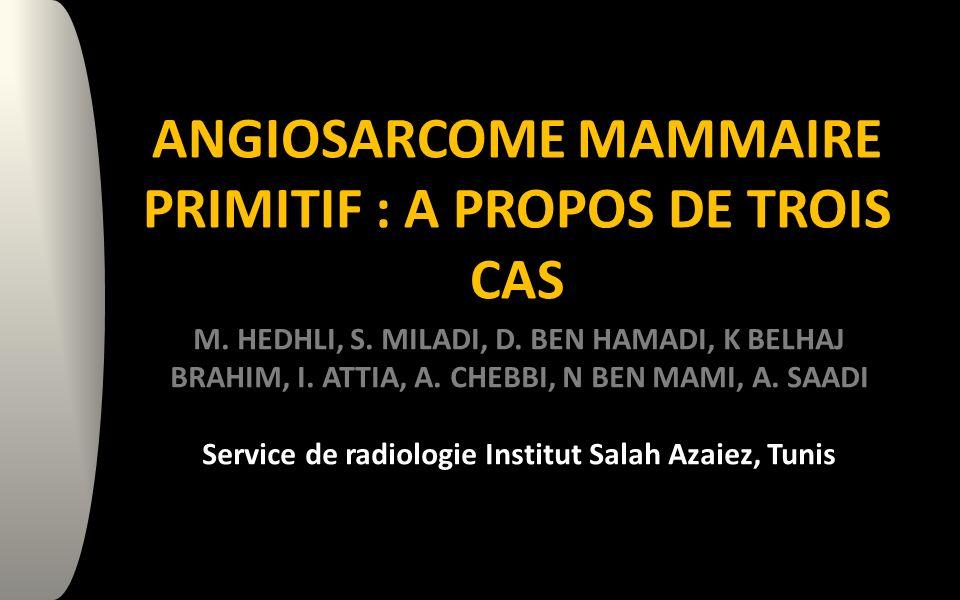 ANGIOSARCOME MAMMAIRE PRIMITIF : A PROPOS DE TROIS CAS M.