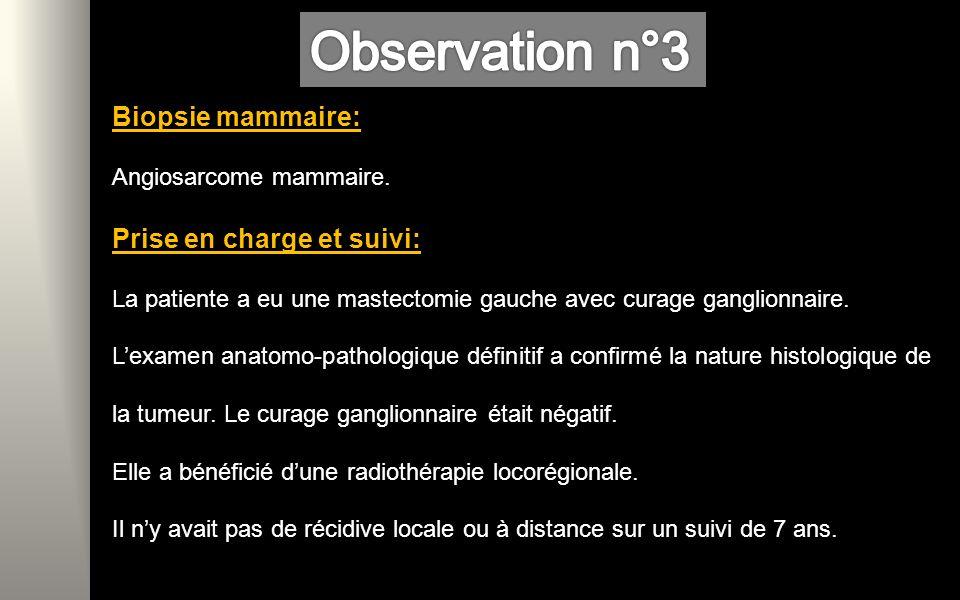 Biopsie mammaire: Angiosarcome mammaire.
