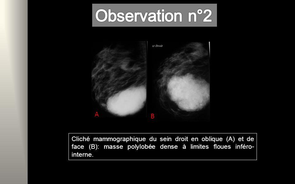 Cliché mammographique du sein droit en oblique (A) et de face (B): masse polylobée dense à limites floues inféro- interne.