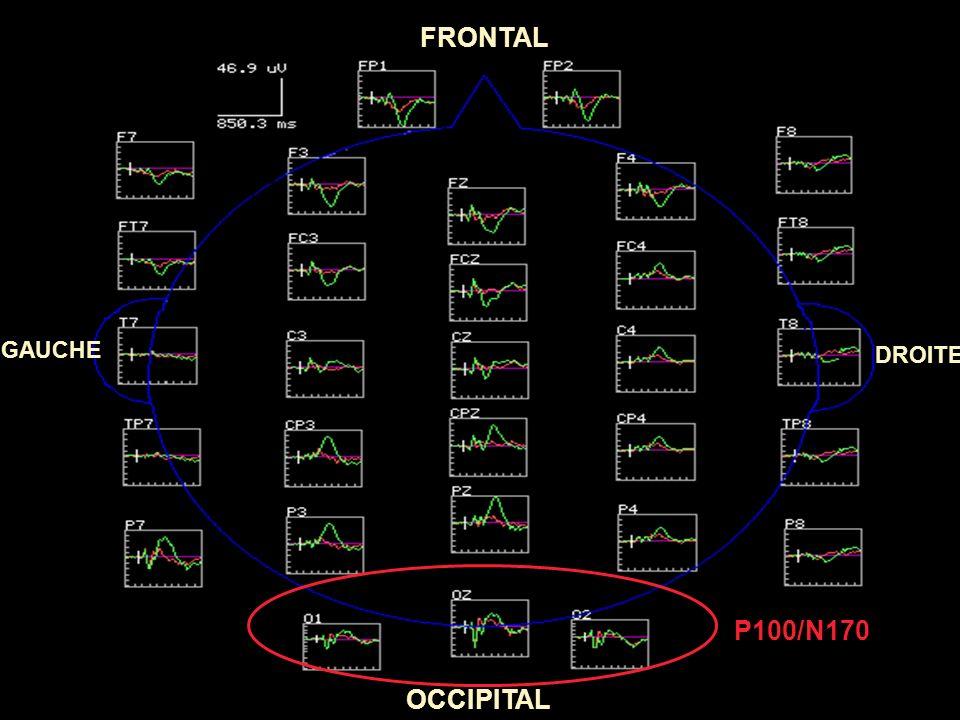 3° Stade décisionnel Une composante : P3b: Achèvement des traitements cognitifs avant la réponse