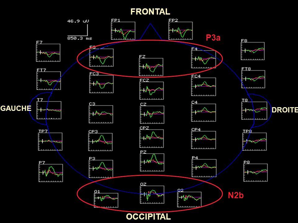 FRONTAL OCCIPITAL GAUCHE DROITE P100/N170