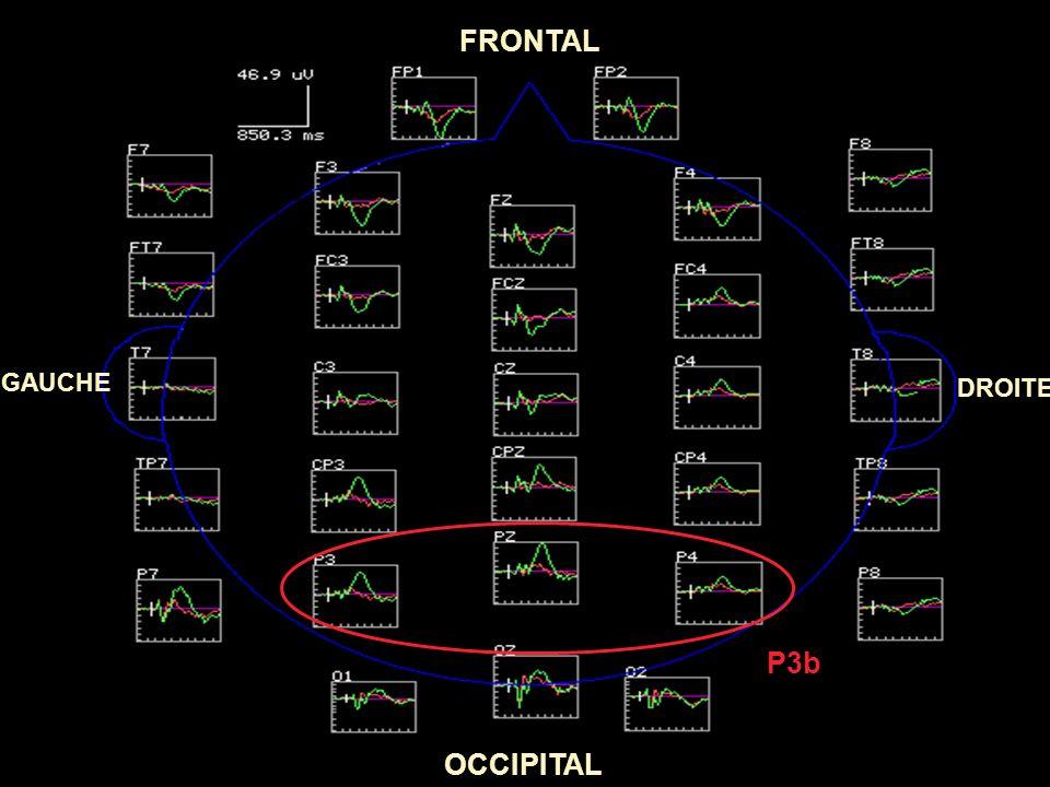 FRONTAL OCCIPITAL GAUCHE DROITE N2b P3a