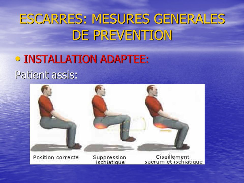 ESCARRES: MESURES GENERALES DE PREVENTION INSTALLATION ADAPTEE: INSTALLATION ADAPTEE: Patient assis: