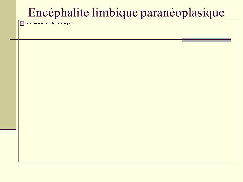 Encéphalite limbique paranéoplasique