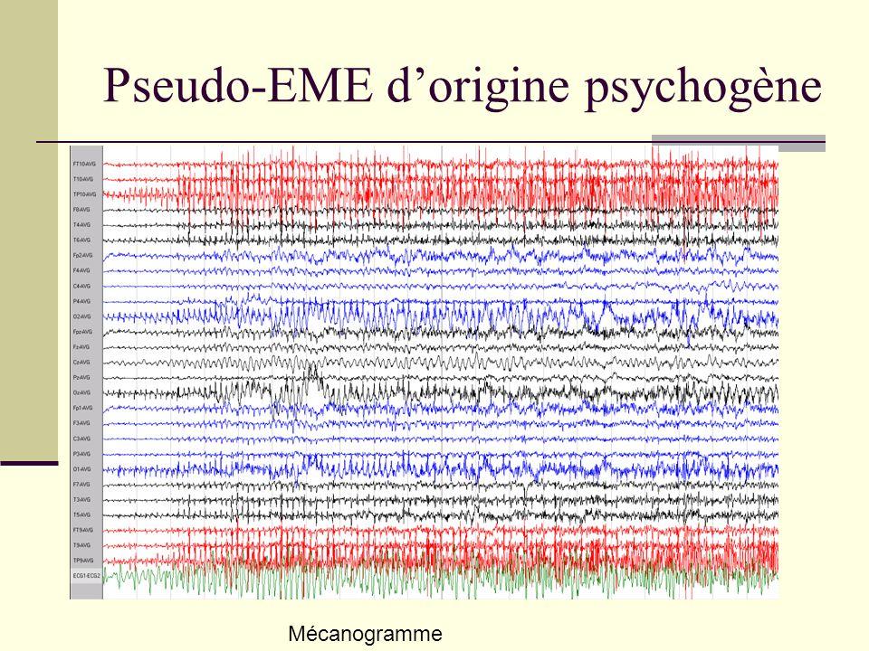 Pseudo-EME dorigine psychogène Mécanogramme