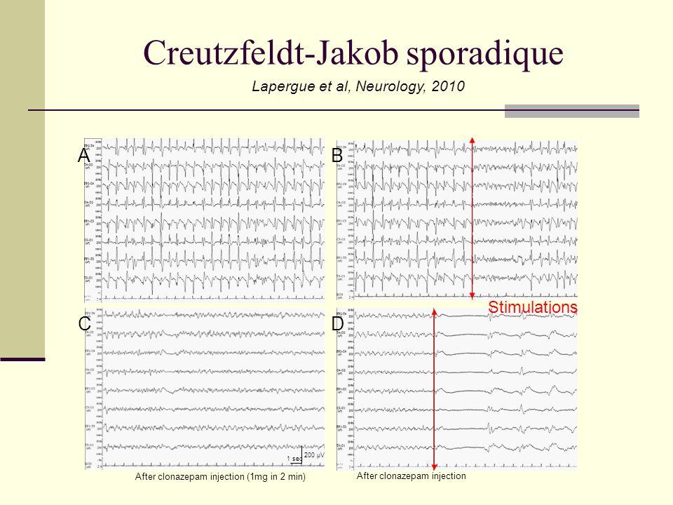 A C B 1 sec 200 µV D After clonazepam injection (1mg in 2 min) After clonazepam injection Creutzfeldt-Jakob sporadique Lapergue et al, Neurology, 2010 Stimulations
