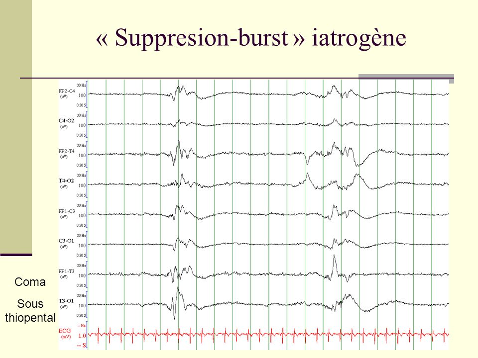 « Suppresion-burst » iatrogène Coma Sous thiopental