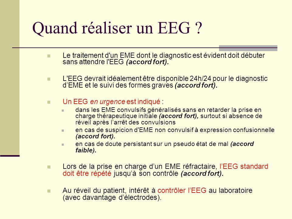 Quand réaliser un EEG .