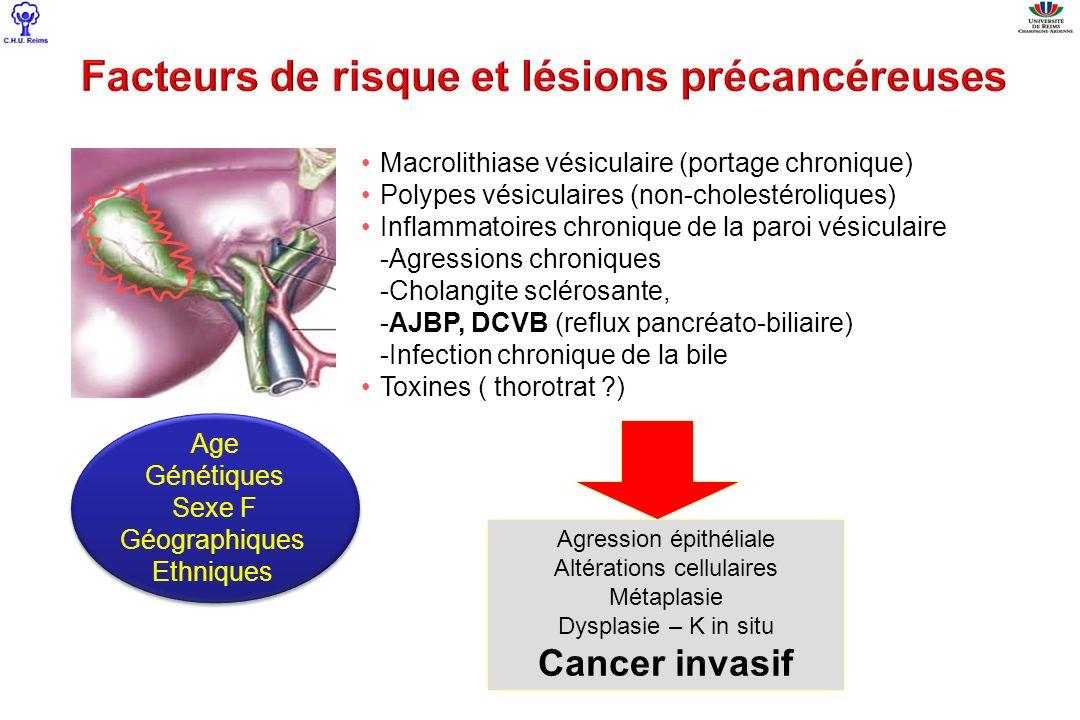 Incidence K vésicule: –DCVB8.8% –AJBP36.1% Incidence K vésicule: –DCVB8.8% –AJBP36.1% en l absence de DCVB, l AJBP favorise fortement les cancers de la vésicule en l absence de DCVB, l AJBP favorise fortement les cancers de la vésicule