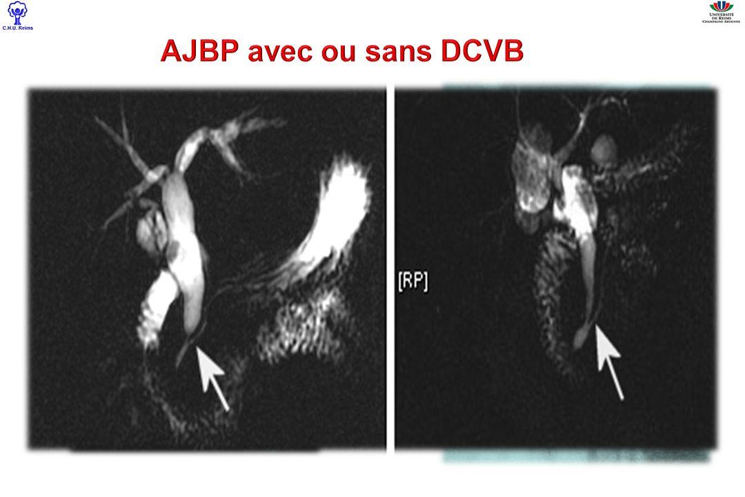 AJBP (n=11) JBP Nle (n=5) NE (n=11) Type Todani I II Iva 10 0 1 203203 713713 Anastomose kysto- digestive 306 Age moyen43,654,250 Sexe ratio F/H9/23/211/0 Type histologique ADK biliaire ADK pancréas C épidermoide 10 1 0 401401 11 0 Localisation Vésicule DCVB Intrahépatique Pancréas 45114511 21202120 25402540 Incidence cancer synchrone chez ladulte ayant une AJBP associée à une DCVB: 8,7% (N=27) Nb total de malades (n=167) Nb de malades ayant un cancer (n=16) Incidence Type I -AJBP -JBP Normale 131 96 (73,3%) 35 (26,7%) 12 10 (83,3%) 2 (16,7%) 9,1% 10,5% 5,7% Type IVa -AJBP -JBP Normale 36 23 (63,9%) 13 (36,1%) 4 1 (25%) 3 (75%) 11,1% 4,3% 23%