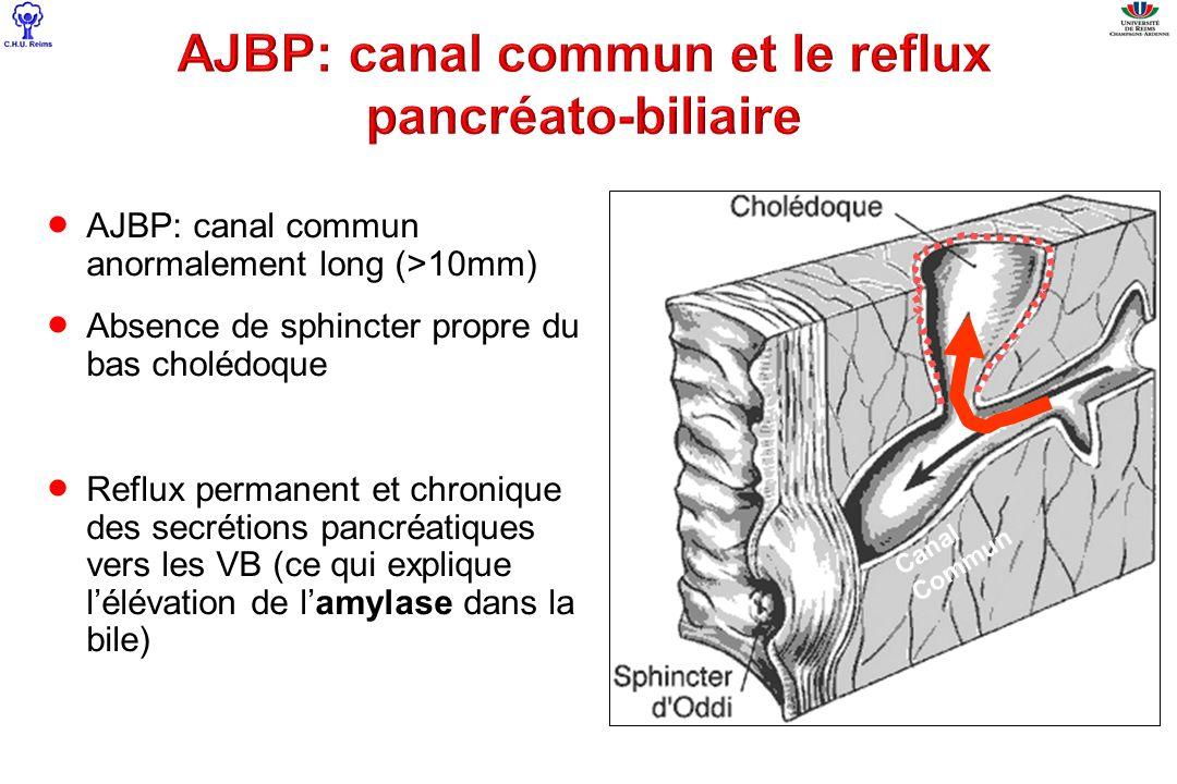 AJBP: canal commun anormalement long (>10mm) Absence de sphincter propre du bas cholédoque Reflux permanent et chronique des secrétions pancréatiques