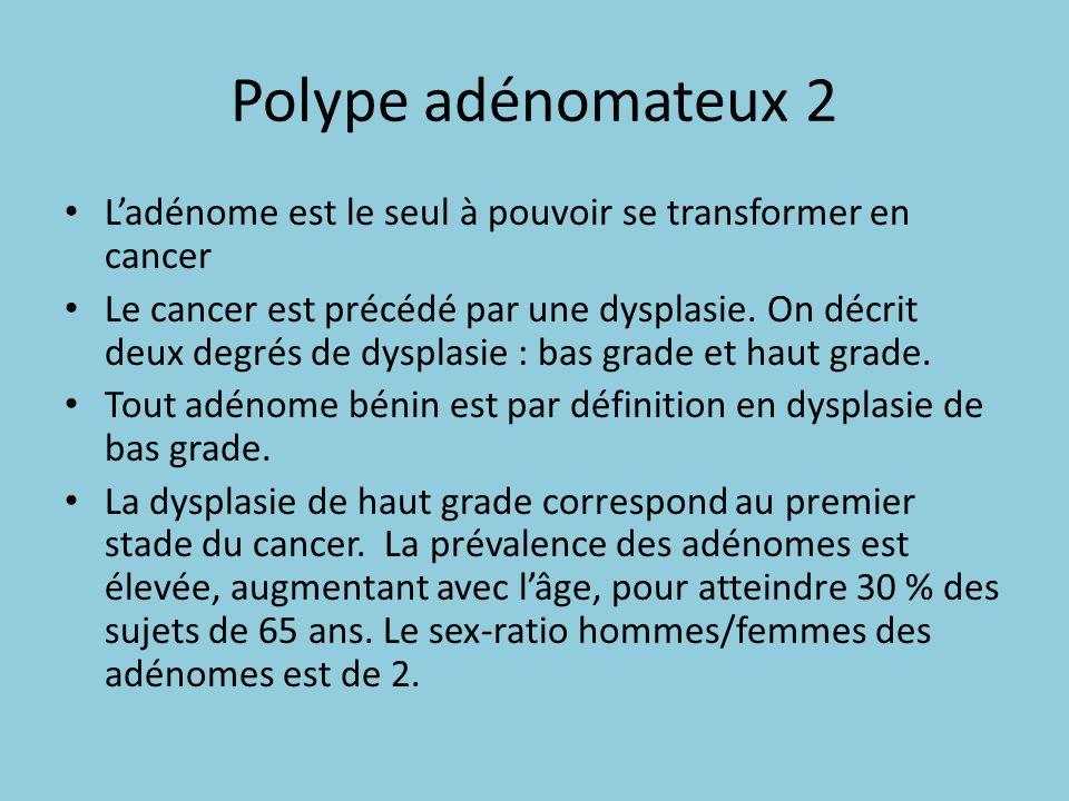 Polype adénomateux 2 Ladénome est le seul à pouvoir se transformer en cancer Le cancer est précédé par une dysplasie. On décrit deux degrés de dysplas