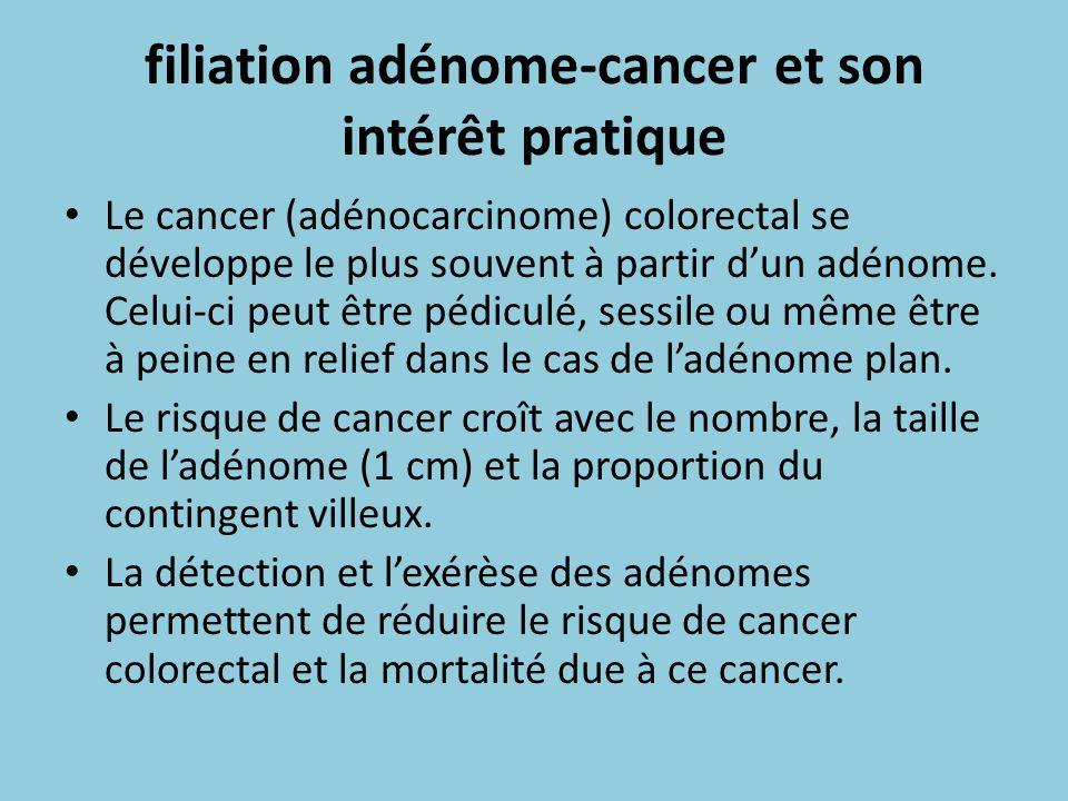 filiation adénome-cancer et son intérêt pratique Le cancer (adénocarcinome) colorectal se développe le plus souvent à partir dun adénome. Celui-ci peu