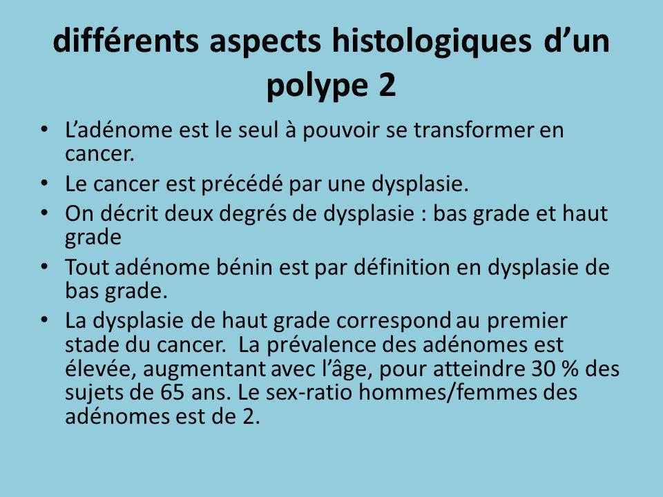 différents aspects histologiques dun polype 2 Ladénome est le seul à pouvoir se transformer en cancer. Le cancer est précédé par une dysplasie. On déc