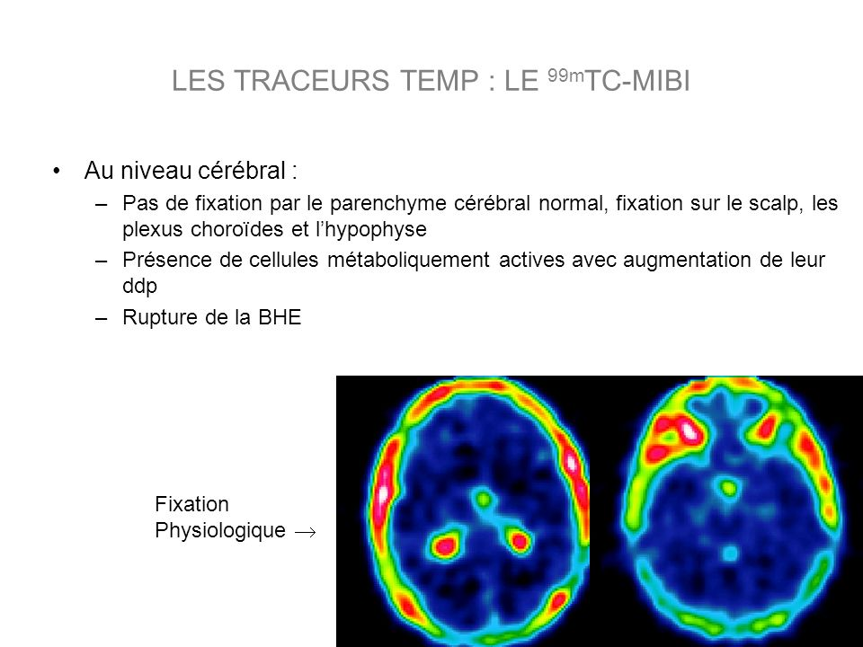 Au niveau cérébral : –Pas de fixation par le parenchyme cérébral normal, fixation sur le scalp, les plexus choroïdes et lhypophyse –Présence de cellules métaboliquement actives avec augmentation de leur ddp –Rupture de la BHE Fixation Physiologique