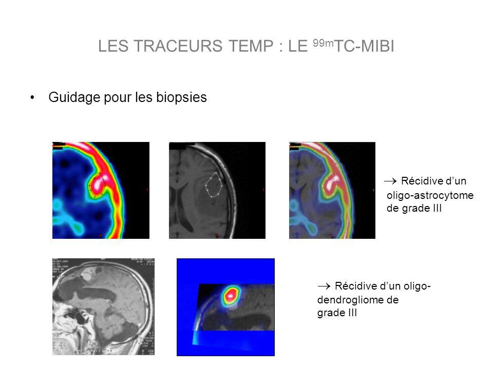 Guidage pour les biopsies Récidive dun oligo- dendrogliome de grade III Récidive dun oligo-astrocytome de grade III LES TRACEURS TEMP : LE 99m TC-MIBI