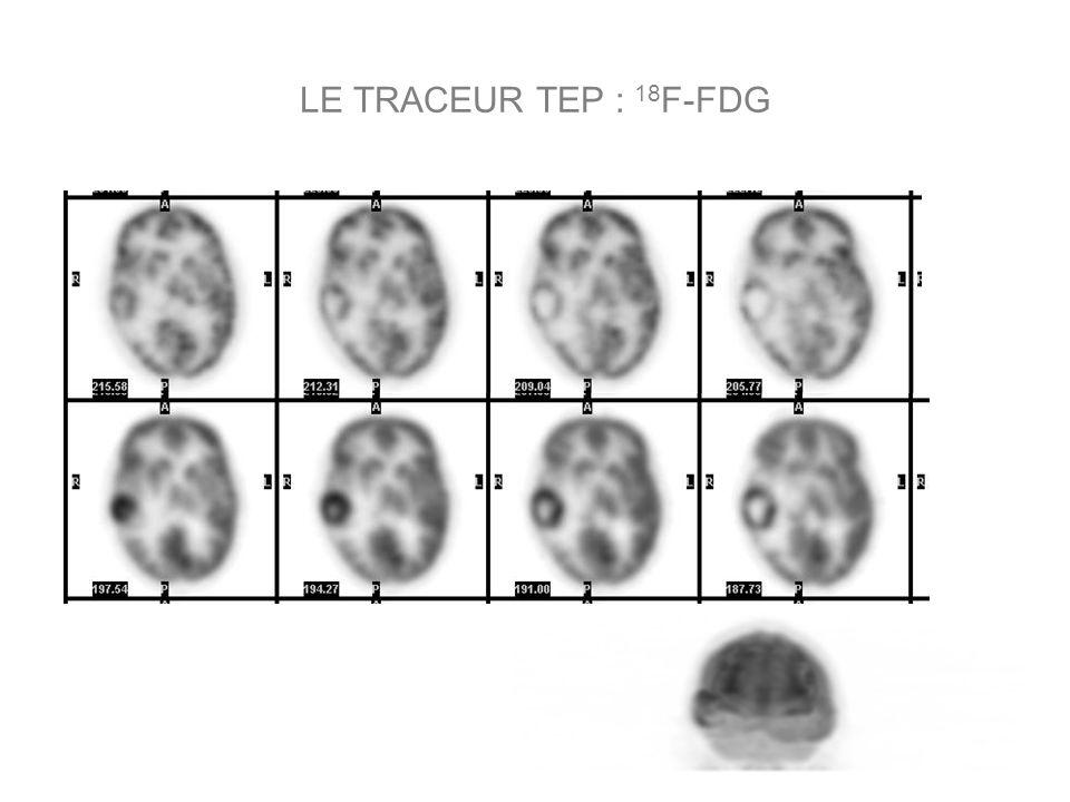 LE TRACEUR TEP : 18 F-FDG