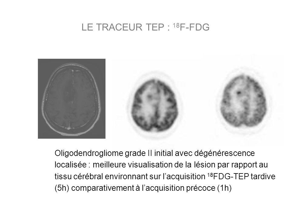 Oligodendrogliome grade II initial avec dégénérescence localisée : meilleure visualisation de la lésion par rapport au tissu cérébral environnant sur lacquisition 18 FDG-TEP tardive (5h) comparativement à lacquisition précoce (1h)