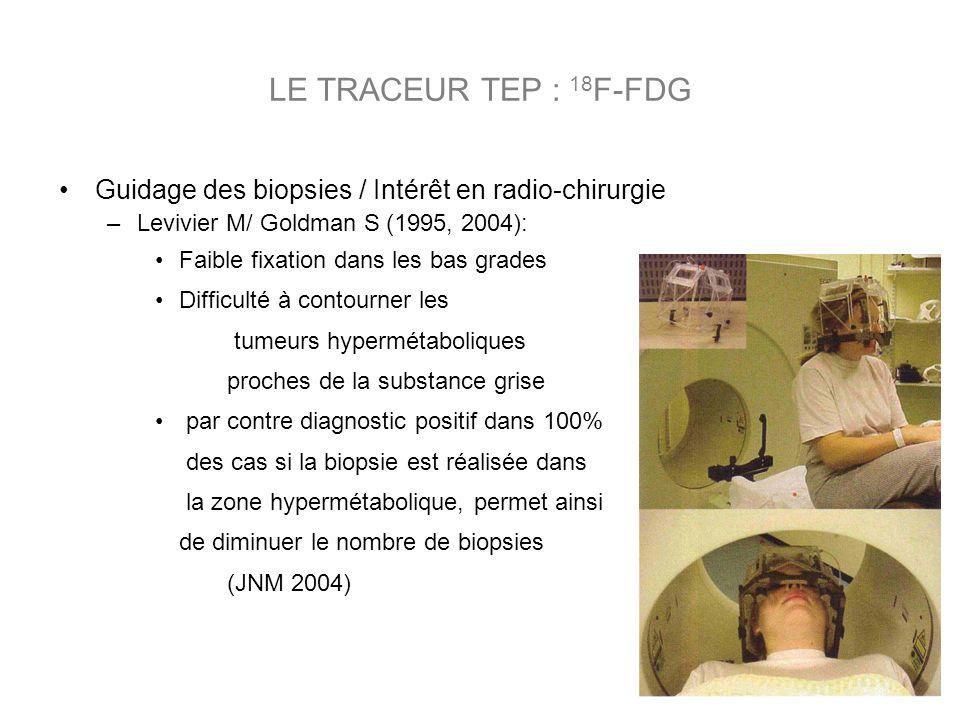 Guidage des biopsies / Intérêt en radio-chirurgie –Levivier M/ Goldman S (1995, 2004): Faible fixation dans les bas grades Difficulté à contourner les