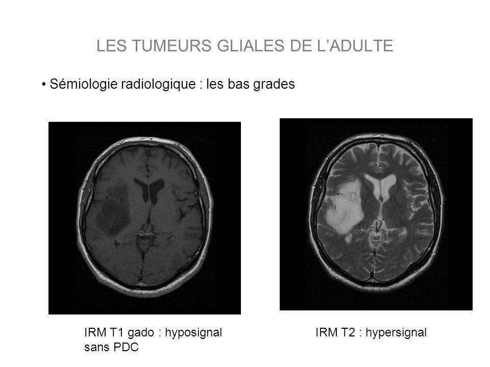 LES TUMEURS GLIALES DE LADULTE IRM T1 avec gado : PDC en couronne IRM T2 : hypersignal, œdème IRM T1 sans injection : hyposignal Sémiologie radiologique : les hauts grades